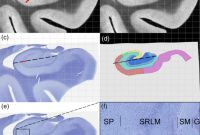 99.1 Mm X 38.1 Mm Label Template Unique Characterization Of Hippocampal Subfields Using Ex Vivo Mri